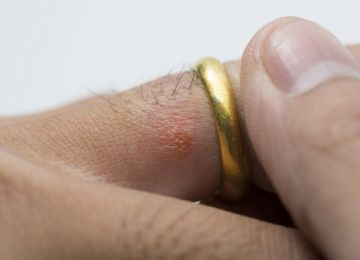 Can't Wear Your Wedding Ring? You Could Have a Metal Allergy
